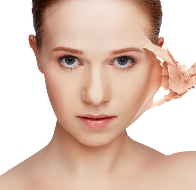 Medicina estética facial peeling superficial químico tratamiento en clinicaalbayc