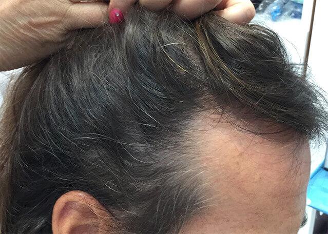 REGENERA ACTIVA capilar clinicaalbayc después del tratamiento