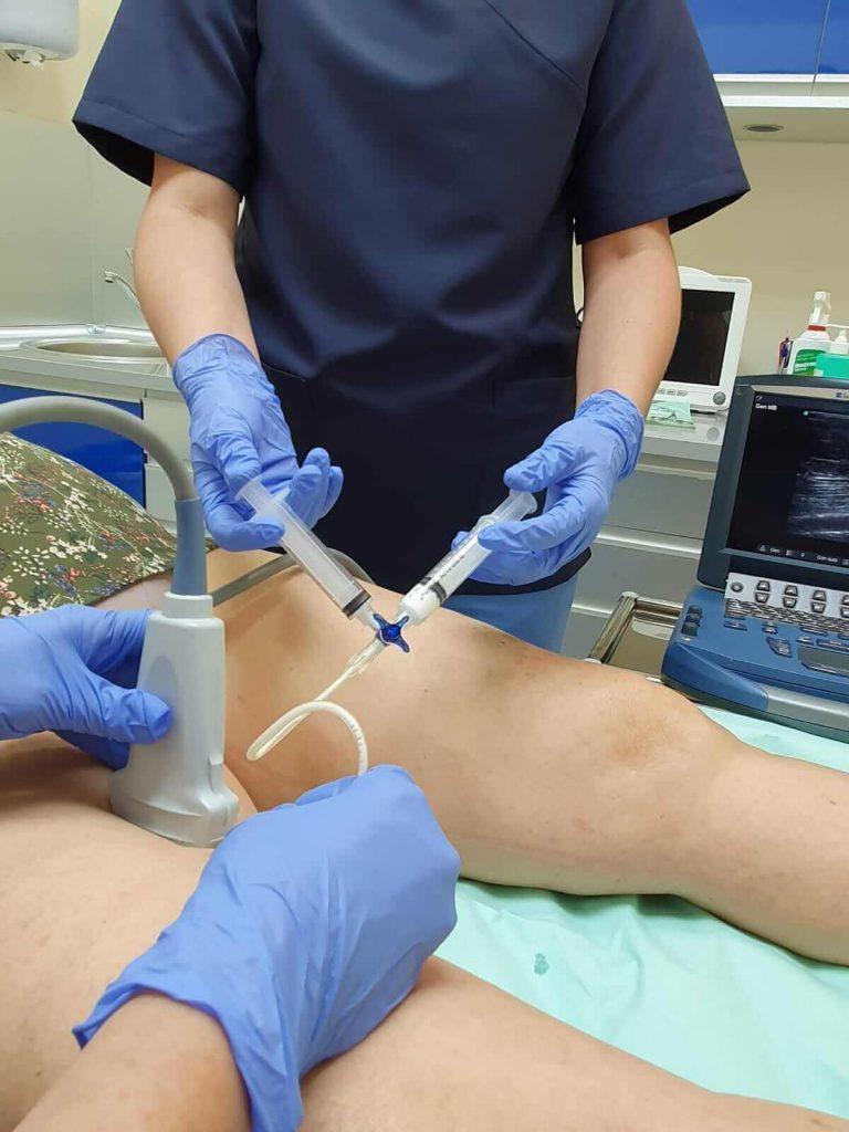 Varices sin cirugía tratamiento espuma clinicaalbayc