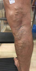 clinicaalbayc (Flebología) Varices sin cirugía antes del tratamiento