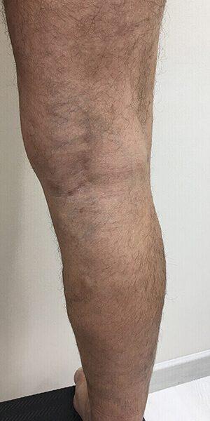clinicaalbayc (Flebología)Varices sin cirugía después del tratamiento