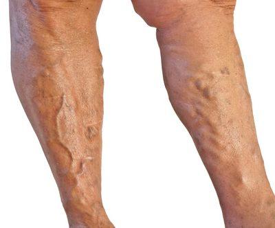 flebología clinicaalbayc varices sin cirugía
